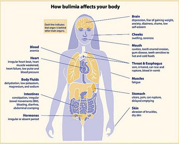 Bulimia - Samantha Bachman